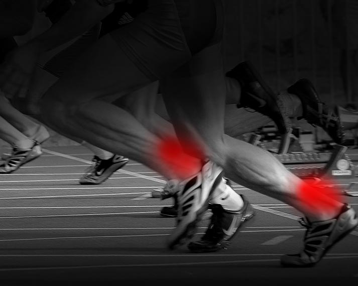 Tendon d'Achille : 8 astuces pour éviter la tendinite !